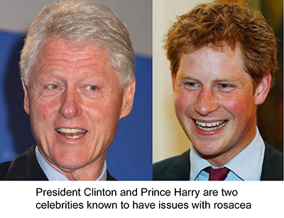 President Clinton and Prince Harry Rosacea