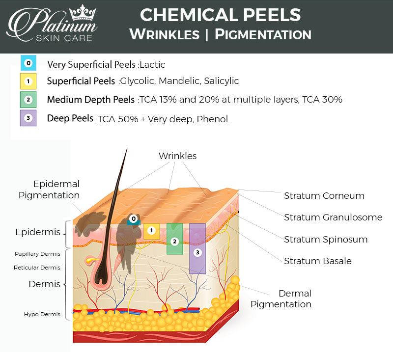 images Glycolic Acid Peels at Home