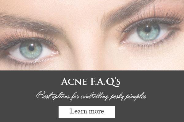 acne-faqs.jpg