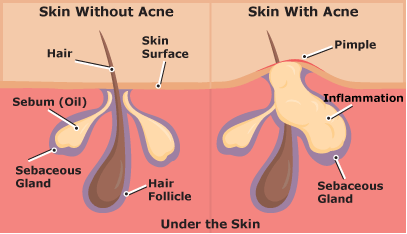 Image result for acne diagram skin without acne