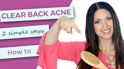back-acne-how-to-clear-how-to-use-web.jpg