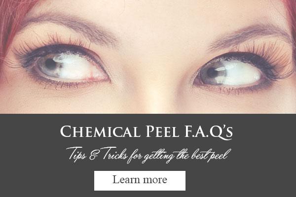 chemical-peel-faqs.jpg