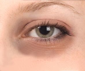Eyes with dark circles