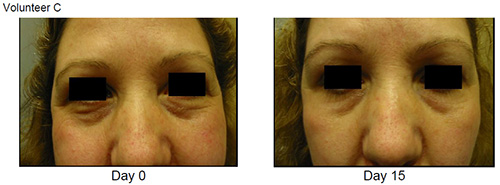 Eyeseryl Before and After Volunteer C