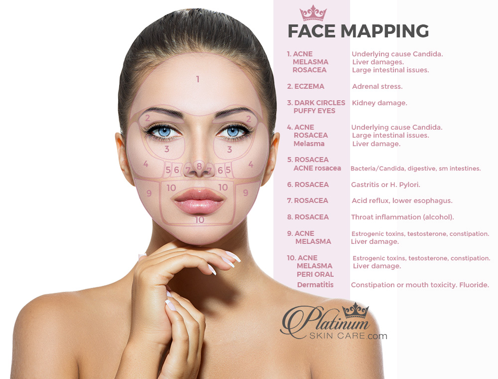Face Mapping Acne Face Mapping to Solve Skin Issues   Platinum Skin Care Face Mapping Acne