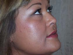 20% TCA Peel After Face