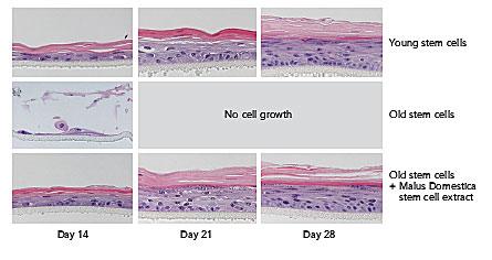 Skin stem cells young versus old