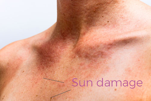 Sun damage stems from too much localized pigmentation in the skin. Sun burns and excessive UV exposure cause pigmentation.