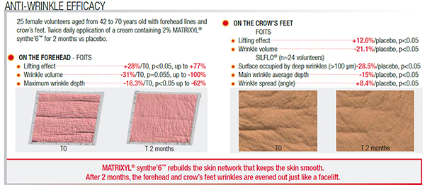 Anti-wrinkle efficacy for crows feet