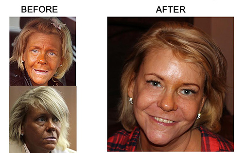 Tanning Before and After