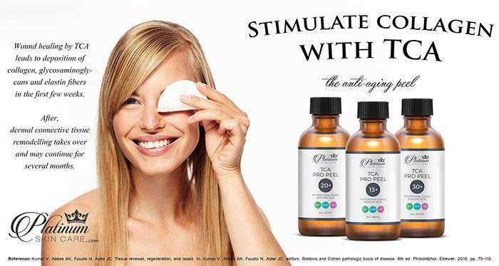 antiaging TCA peel stimulates collagen